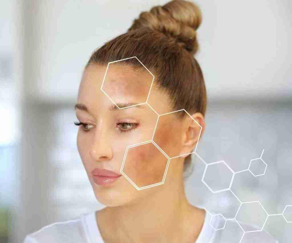 facial for pigmentation